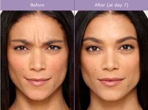 botox before and after photo 300x223 - BOTOX® Cosmetic   | Beverly Hills | Los Angeles