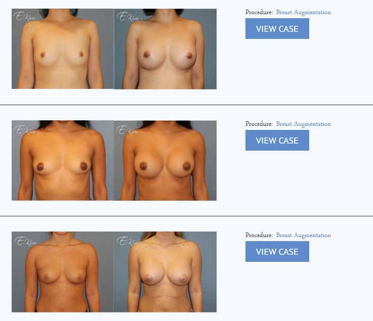 breast augmentation implants before after beverly hills CA